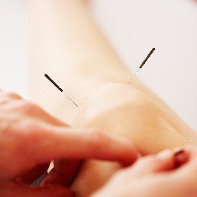 Akupunktur | Tiger Balm
